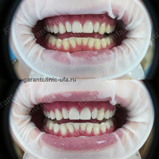 Отбеливание зубов в Уфе: цены, длительность, противопоказания