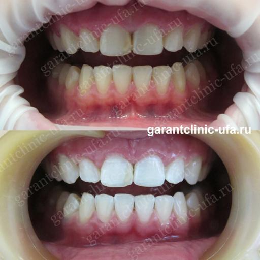 Отбеливание зубов в Уфе революционной системой холодного света